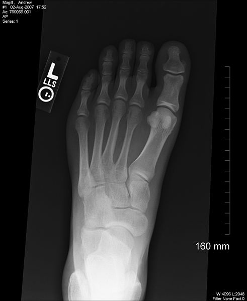 491px-X-ray_foot_1
